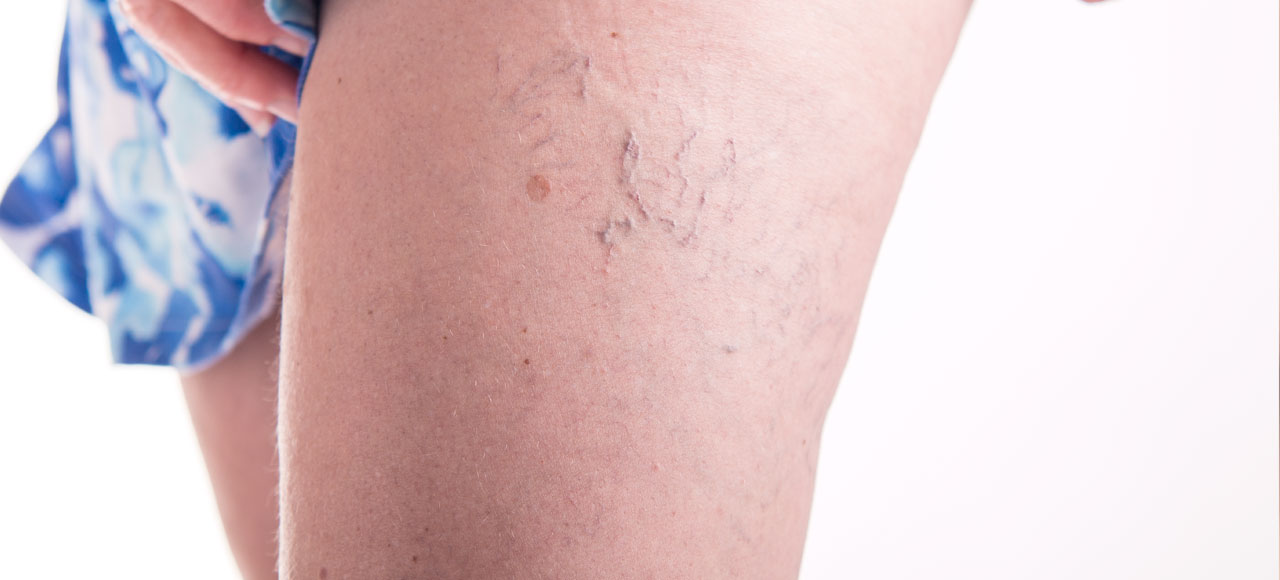Make Unsightly Leg Veins a Thing of the Past